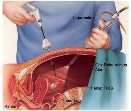 Laporoskopik Endometriozis Tedavisi