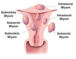 Tüp Bebek Tedavisi ve Myom